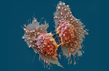 Function of FGFR3-TACC3 Gene Fusions in Cancer