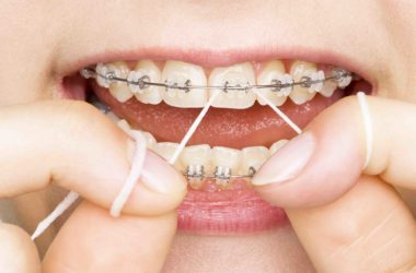 Misconceptions About Dentures That You Must Know Before Visiting Dentist