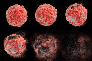 Radiation Treatment For Cancer How It Works